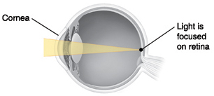 Cross section of eye showing light focusing on retina.