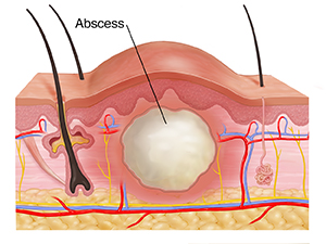 Cross section through skin layers showing abscess.