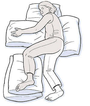 Woman lying on side unaffected by stroke with pillows supporting back, head, arm, and unaffected leg.