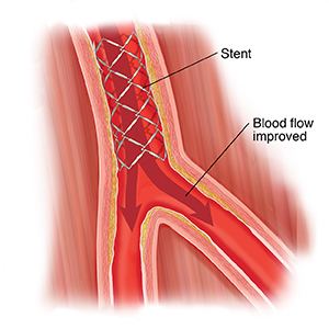 Cross section of peripheral artery with stent.