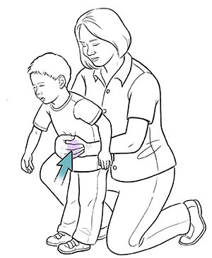 Woman doing choking rescue maneuver on toddler boy.