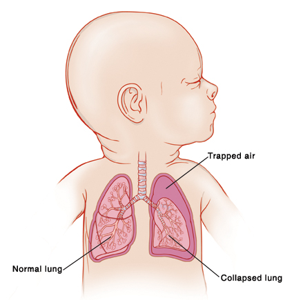 Closeup of baby with head turned to side showing airway and lungs. Left lung has trapped air around it, and lung is collapsed.